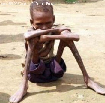 A Starving Child In Haiti